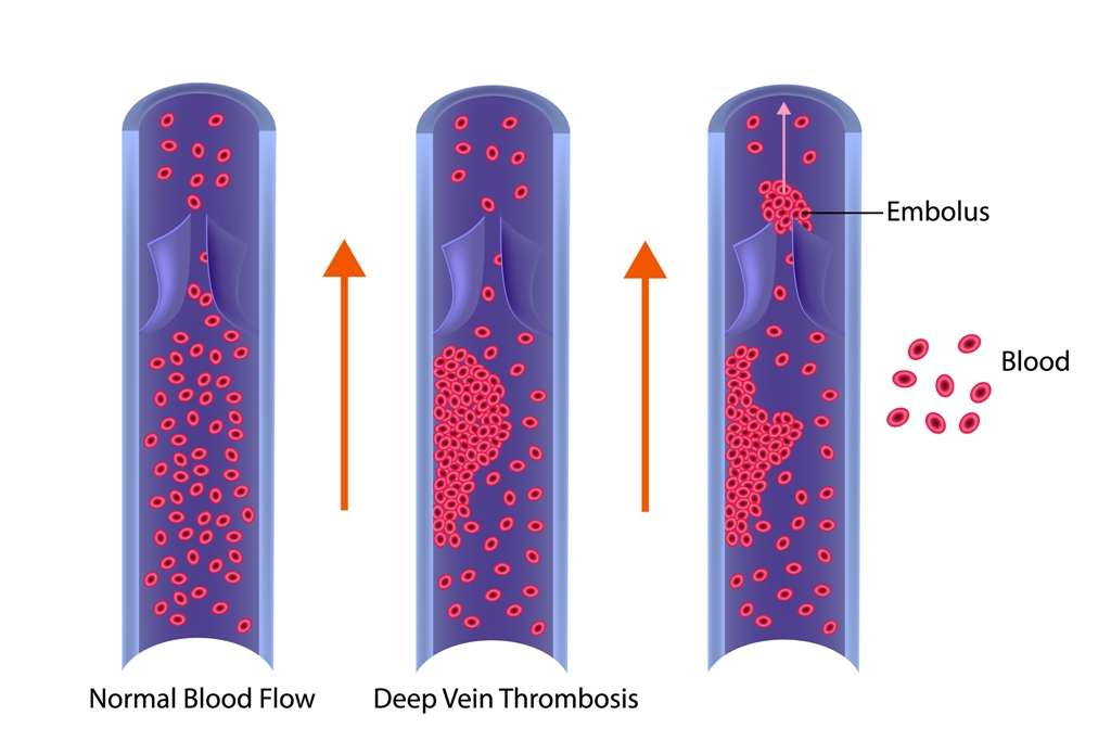 Deep vein thrombosis or blood clots (Embolus)