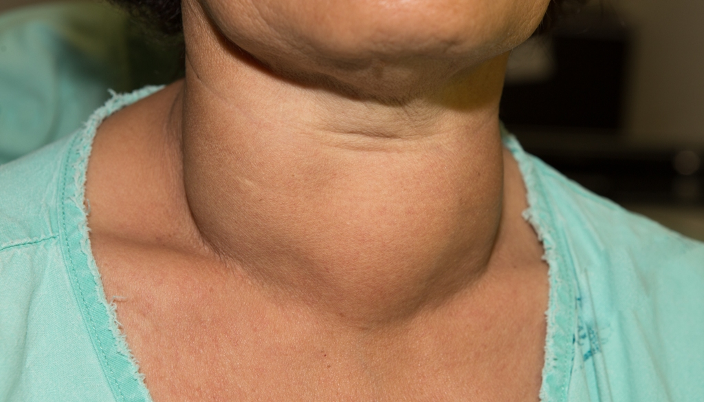 Goiters and thyroid cancer