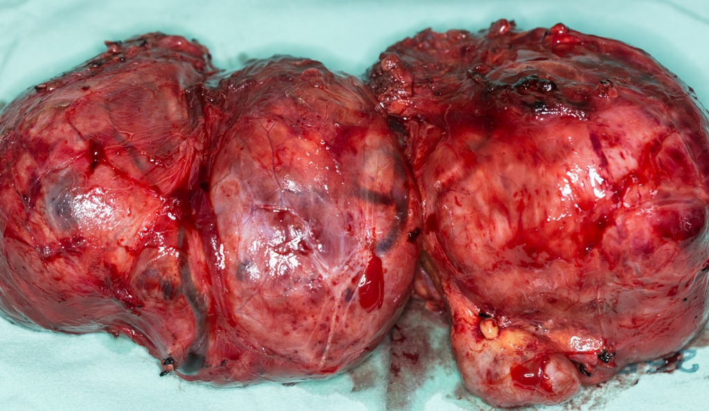 Thyroid gland removed after surgery