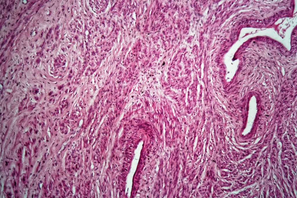 Microscopic view of uterine fibroids in a patient