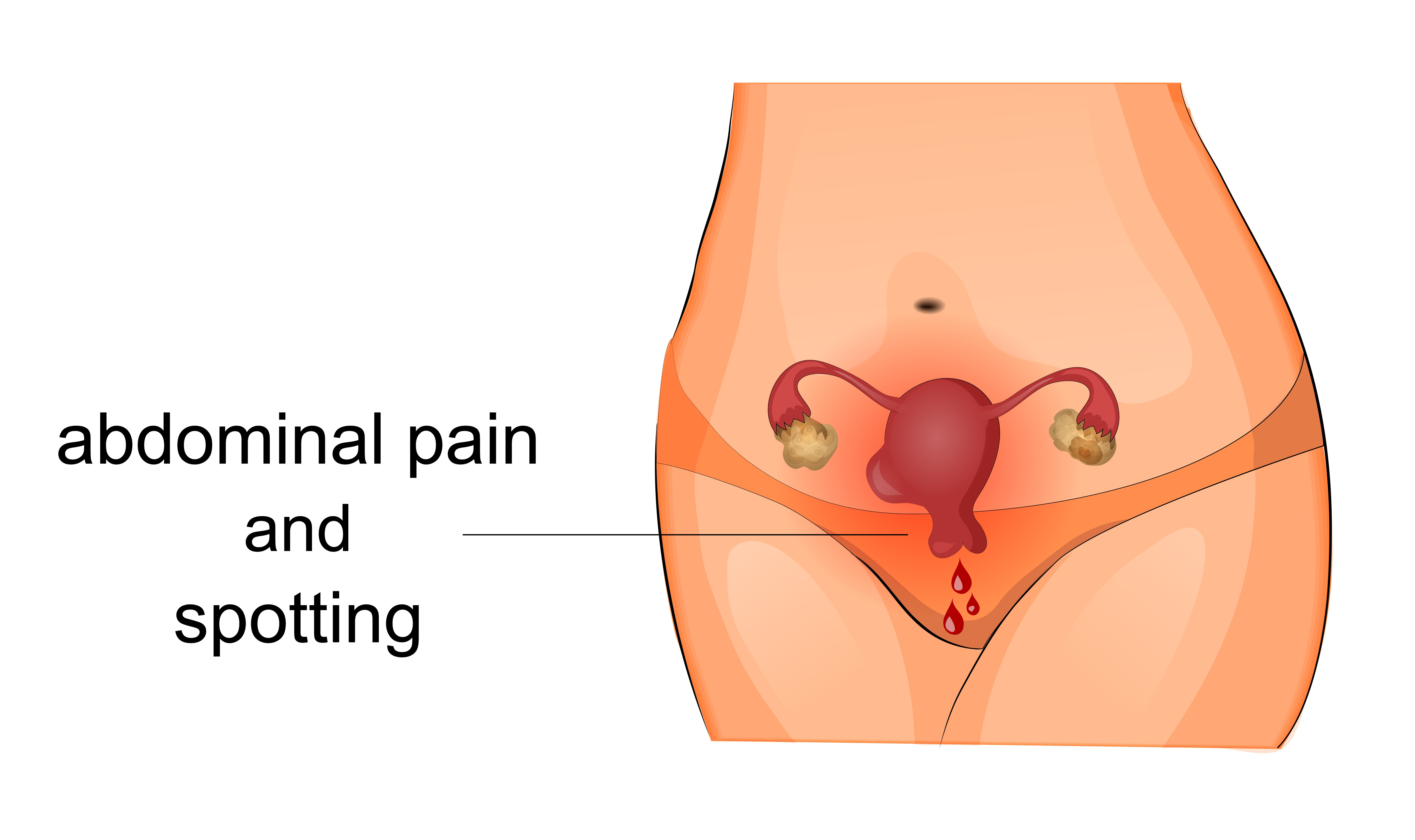 Typical symptoms of uterine fibroids