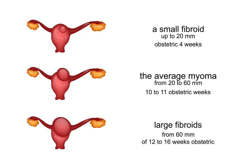 Classification of size of fibroids