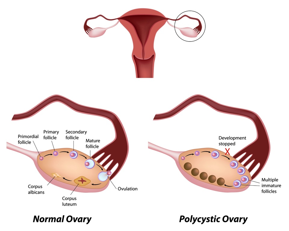 Normal ovarian cycle and Polycystic ovary syndrome