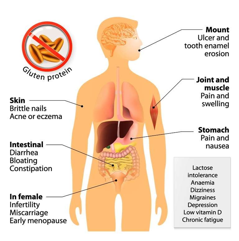 Celiac disease signs and symptoms