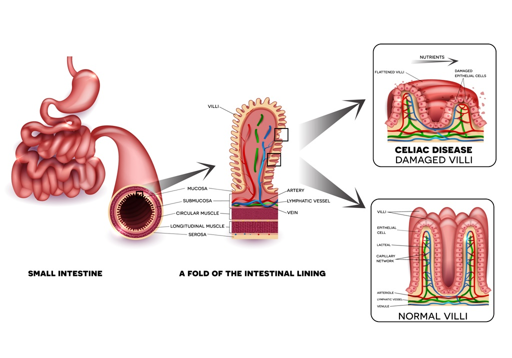 Damaged intestinal lining due to celiac disease