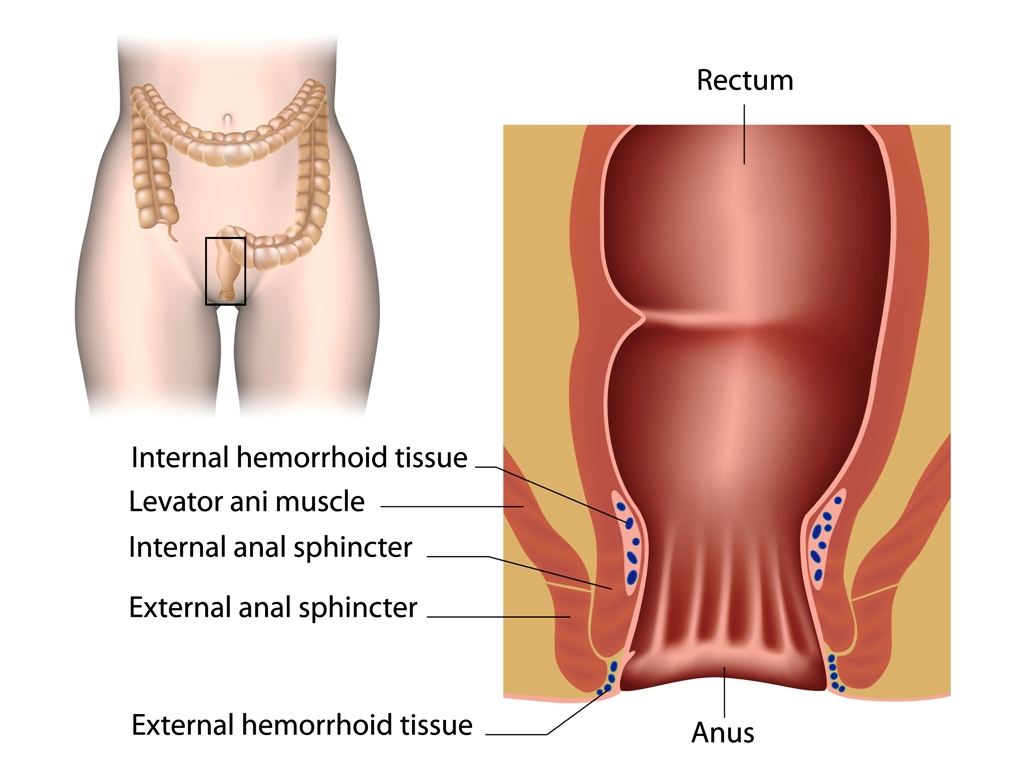 Hemorrhoids and anal canal