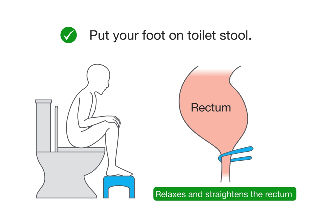 Correct sitting posture on toilet seat