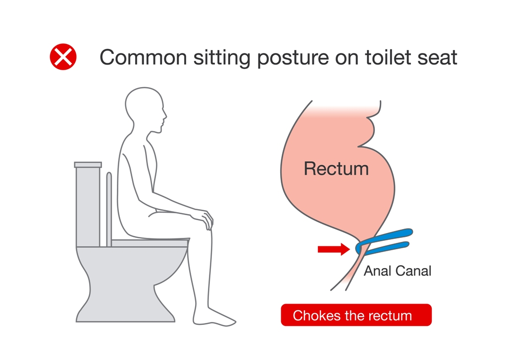 Wrong (but common) sitting posture on toilet seat