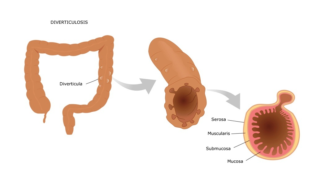What is diverticula?