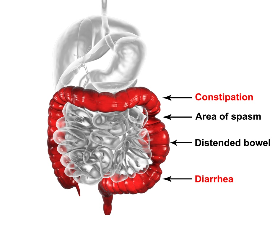 Causes of irritable bowel syndrome