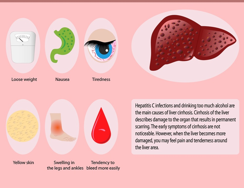 Symptoms of cirrhosis