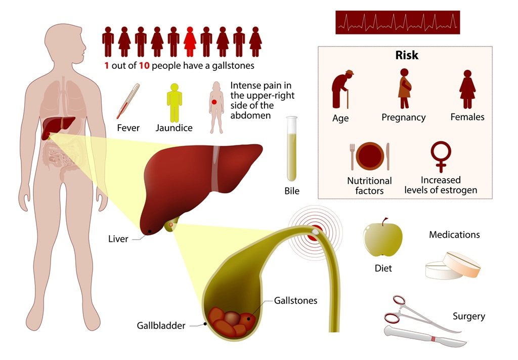 Gallstones overview