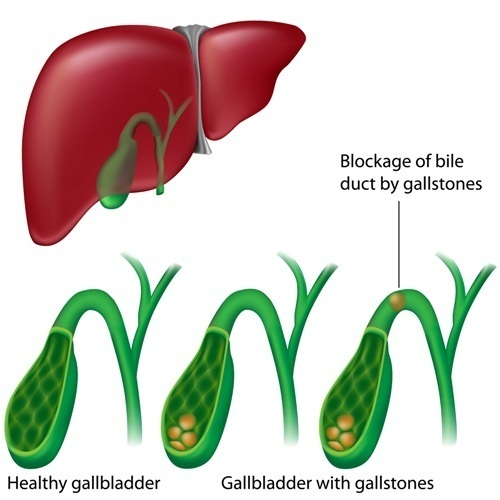 Healthy gallbladder vs gallbladder with stones