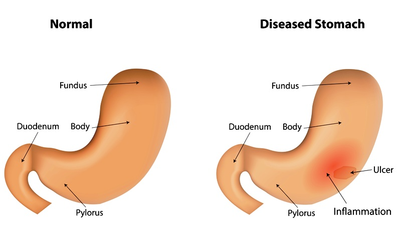 Normal stomach and diseased stomach