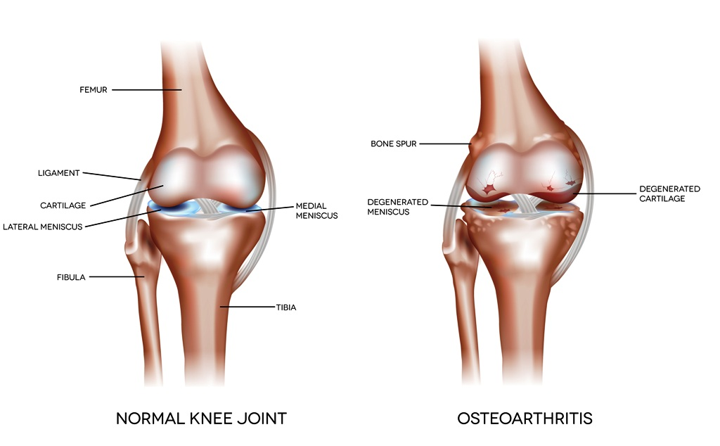 Normal knee joint and a joint with osteoarthritis