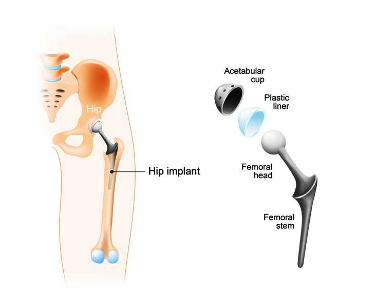 Total hip replacement (arthroplasty) and hip Implant