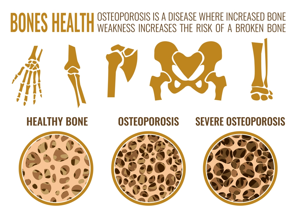 Osteoporosis stages image