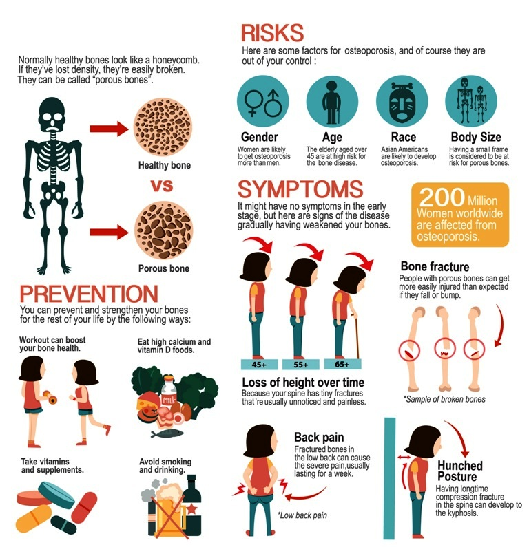 Osteoporosis overview