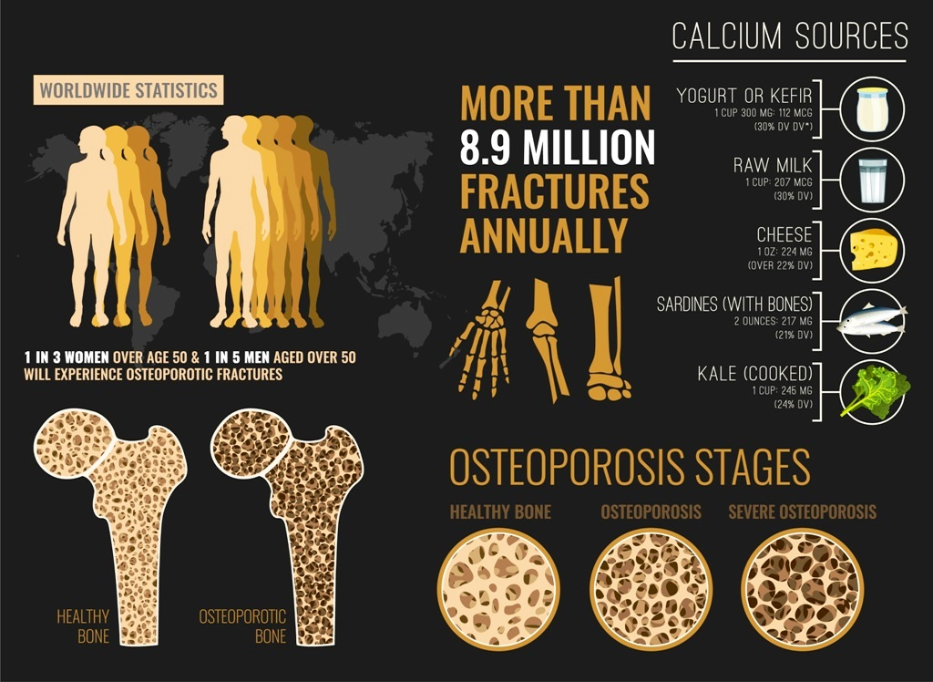 Osteoporosis stages and calcium sources