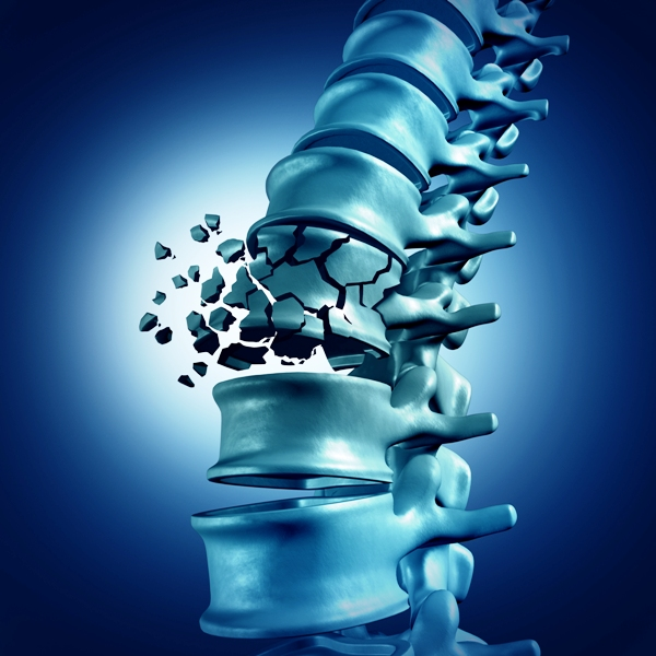 3D illustration of spinal fracture due to osteoporosis