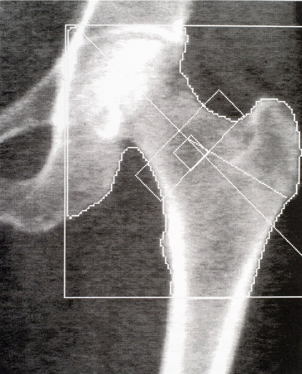DEXA densitometry hip scan