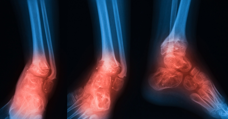 X-ray image of ankle joint with osteomylitis