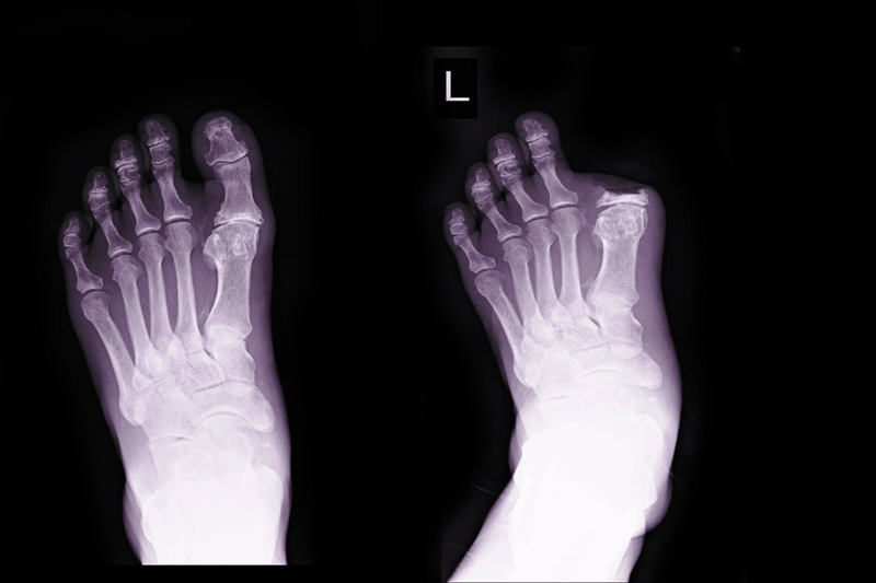 X-ray image before and after osteomylitis operation