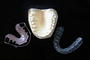 Night Guard (Mouth Guard or Dental Guard) for Teeth Grinding
