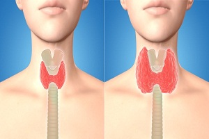 How to Diagnose Overactive Thyroid (Hyperthyroidism)?