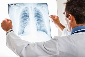 How Do Doctors Diagnose Tuberculosis (TB)?