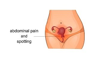 Complications and Signs and Symptoms of Uterine Fibroids