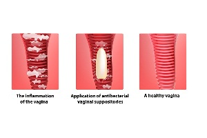 Treating Different Types of Vaginitis