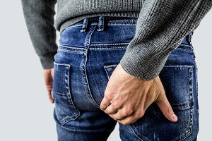 What are Hemorrhoids?