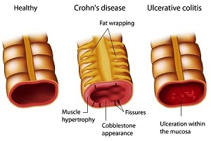 Ulcerative Colitis: Causes, Symptoms, Diagnosis, Treatment