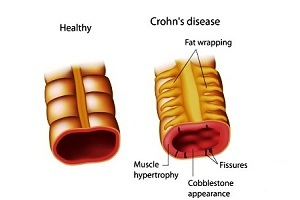 Crohn's Disease: Causes, Symptoms, Diagnosis, Treatment, Complications