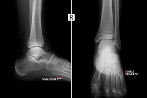 Bone Cyst on Foot or Toe or Ankle
