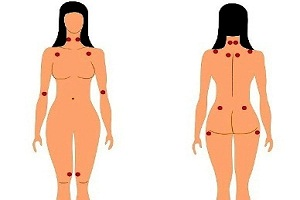 Fibromyalgia Pain Points or Fibromyalgia Trigger Points or Fibromyalgia Tender Points