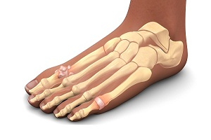 All You Need to Know About Gout