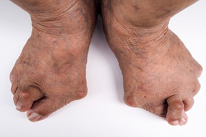 Most Common Places For Gout: Where Do You Get Gout?