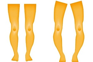 An Overview of Rickets Disease