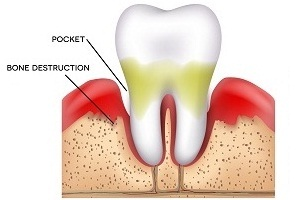 Causes of Periodontal Disease (Gum Disease)
