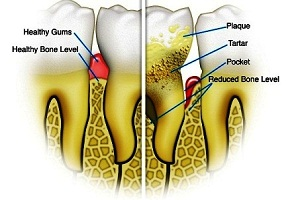 What is Periodontal Disease (Gum Disease)?