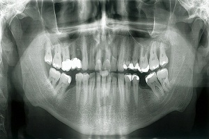 How to Read Dental X Rays or Radiographs for Cavities?