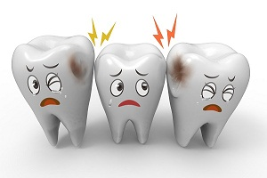Basics of Dental Caries (Tooth Decay and Dental Cavity)