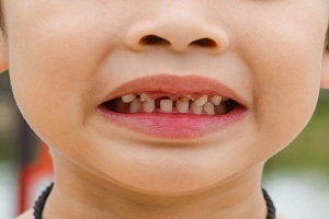 Kids Rotten Teeth: What You Should Know About It?