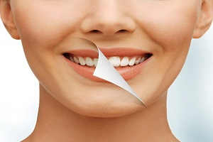 What Can You Do to Prevent Tooth Sensitivity?