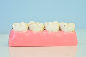 How to Tighten Loose Teeth Naturally?