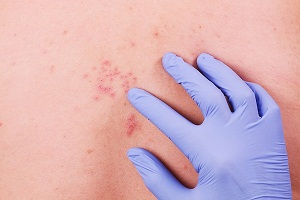 Diagnosis of Shingles