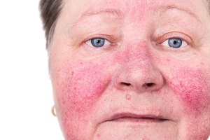 What are the Signs and Symptoms of Rosacea?