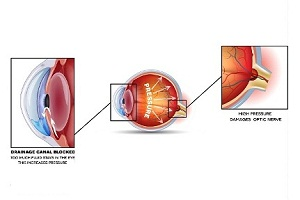 What are the Causes of Glaucoma?